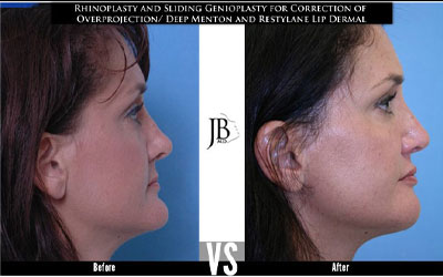 Genioplasty Surgery | Rhinoplasty Profile Alignment