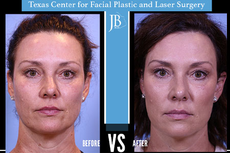 Liquid Facelift San Antonio | Nonsurgical Facelift