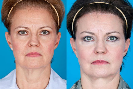 Facial Fat Grafting San Antonio | Facelift Surgery