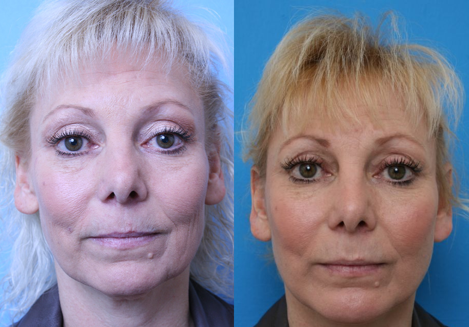 Best Procedures to Complement Facelift