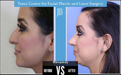Answering Common Questions about Rhinoplasty Recovery