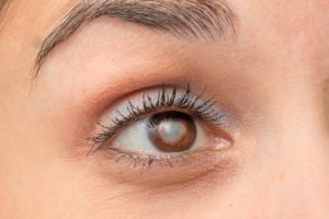 Periorbital Rejuvenation: Combining Brow Lift with Eyelid Surgery