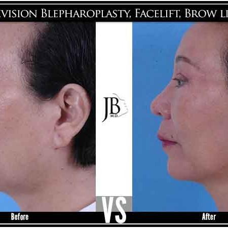 Asian Facelift | Asian Facial Rejuvenation