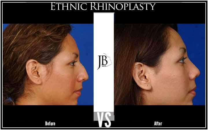 Hispanic Rhinoplasty San Antonio