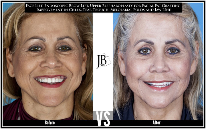 Facial Fat Transfer San Antonio | Natural Results | Facial Rejuvenation