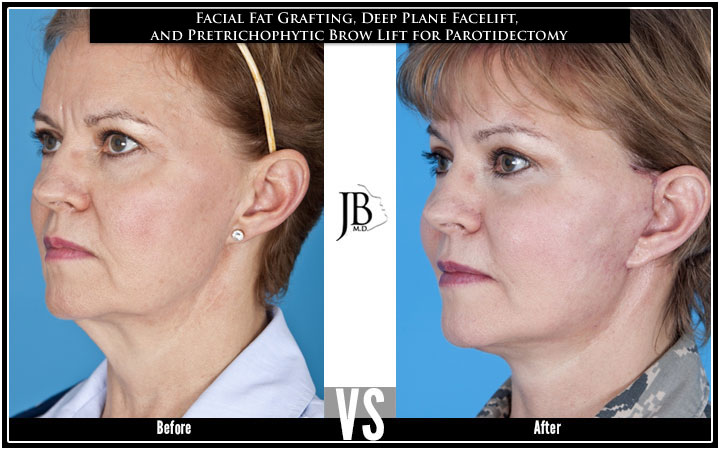 Deep Plane Facelift | Facial Fat Grafting | Hairline Browlift