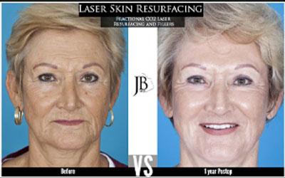 Laser Eyelid Surgery | Blepharoplasty Surgery