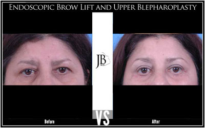 Endoscopic BrowLift San Antonio | Dr. Jose Barrera