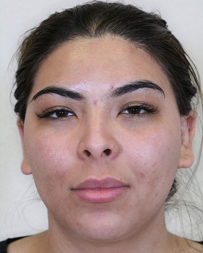 Barrera-Buccal-fat-removal-before