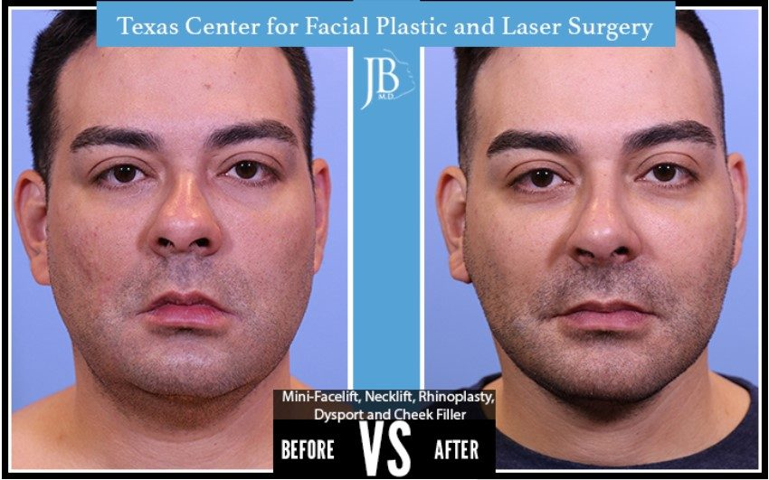 Barrera-Facelift-Botox-Fillers-Modern-Male-San-Antonio