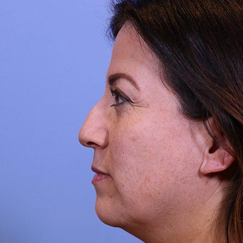 Barrera-Non-surgical-rhinoplasty-San-Antonio-before