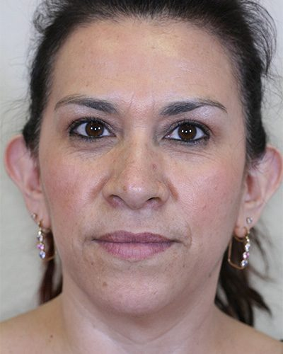 Barrera-Otoplasty-Before1