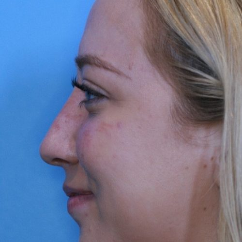 nonsurgical-rhinoplasty--11890