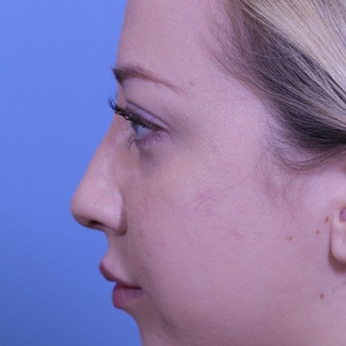 nonsurgical-rhinoplasty--11895